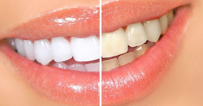 Izbeljivanje zuba nis